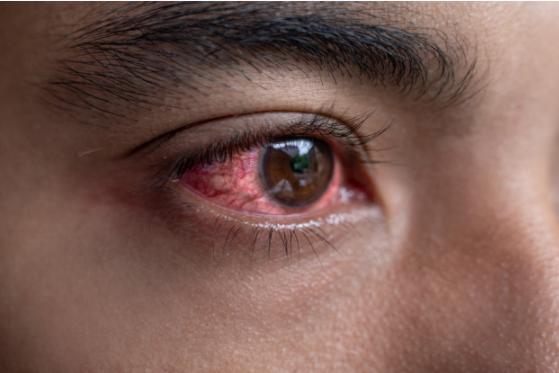 caracteristicile proceselor mentale cu insuficiență vizuală